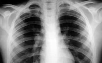 запорожье туберкулез