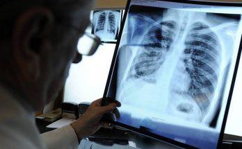 туберкулеза умер ребенок